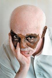 Did you know that Vitiligo is a chronic skin disease ...